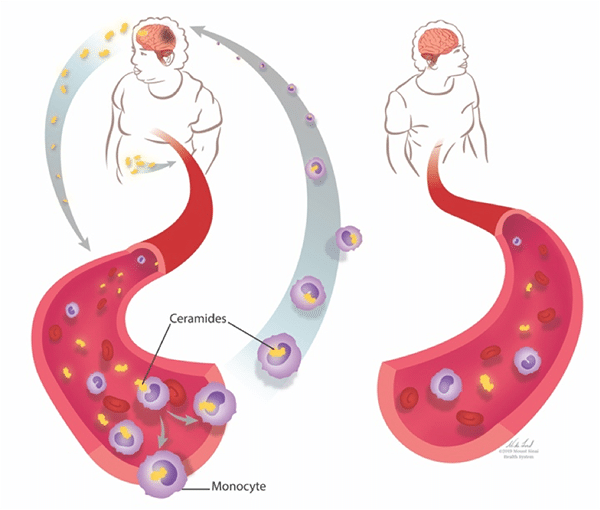 Diagram: ceramides in a person with high vs. moderate body mass