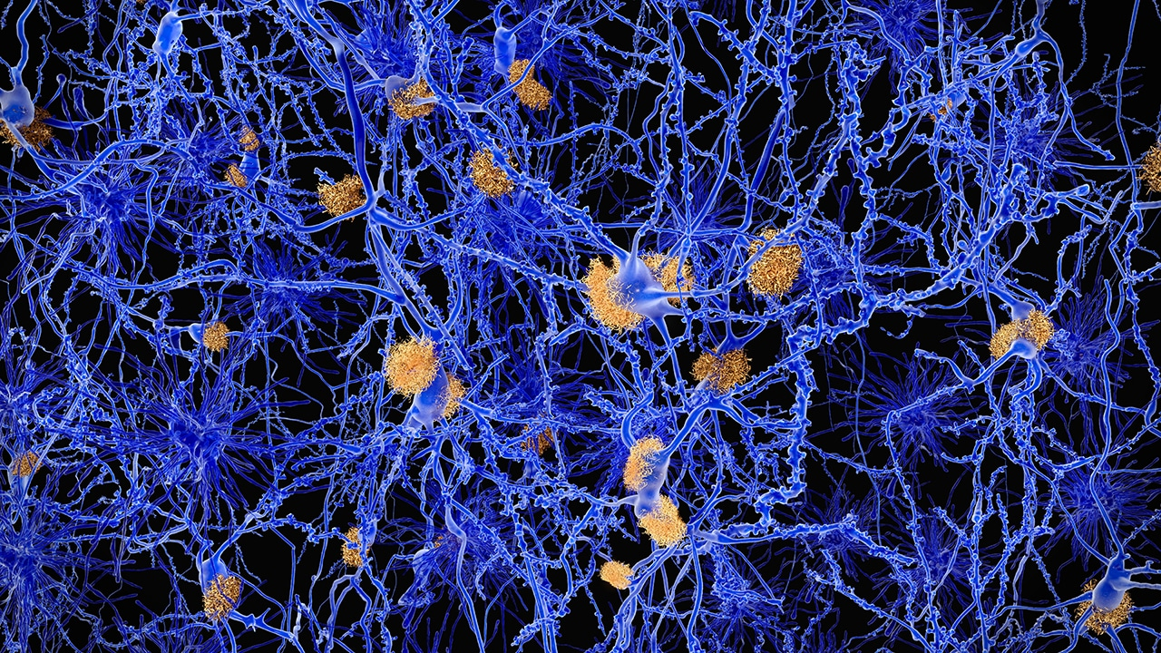 microscope image of neurons affected by alzheimer disease